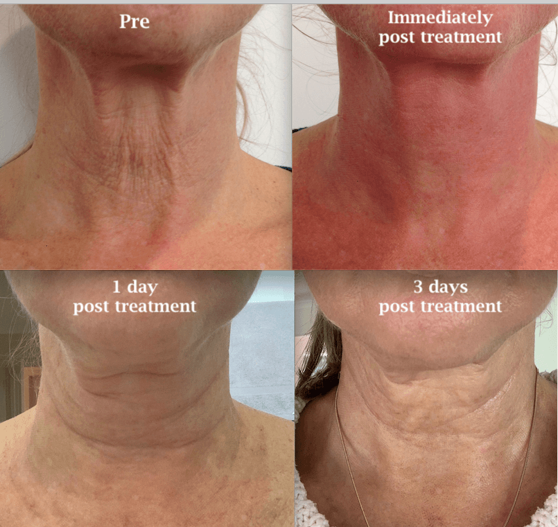 Recovery HIFU & 1540 Fractional Laser first 3 days