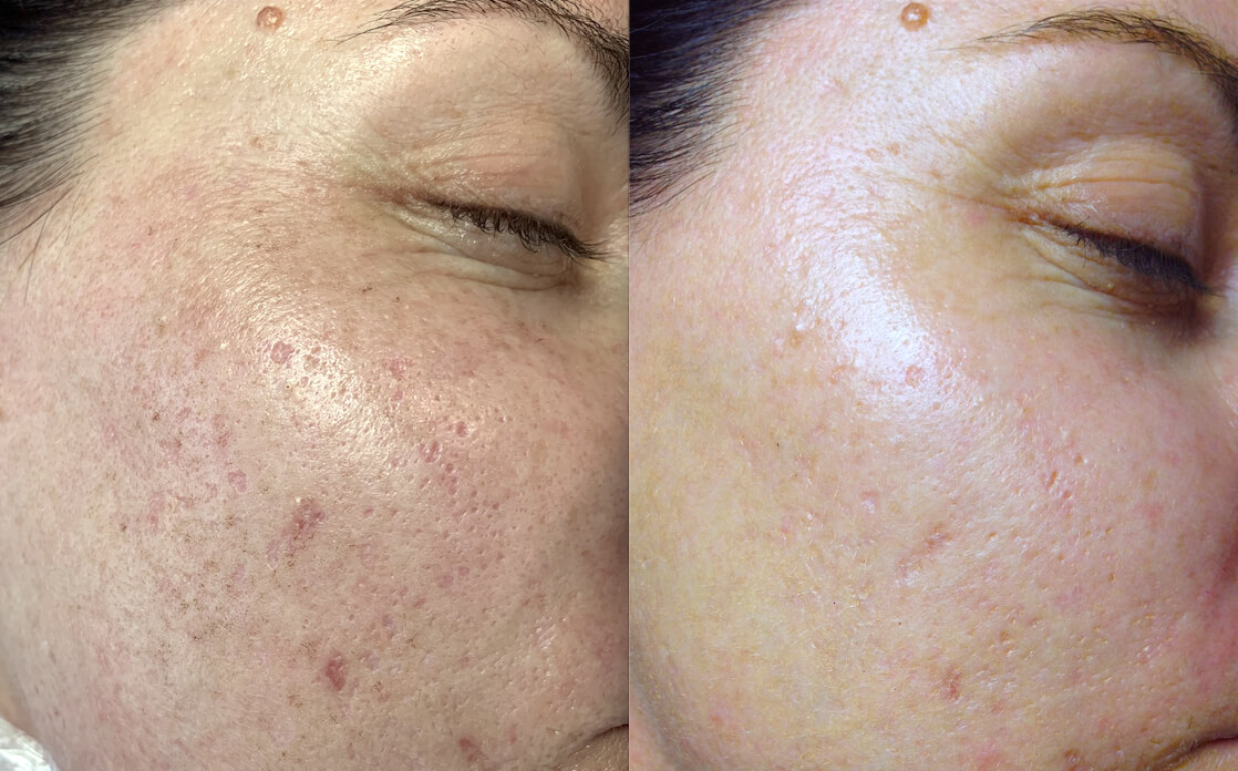 4 weeks post 1 x 1540 fractional laser acne scarring